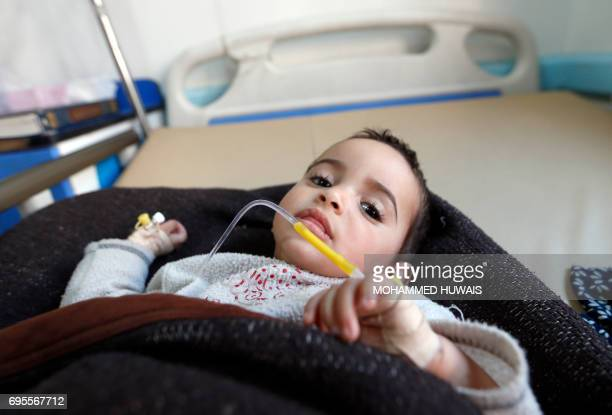 A Yemeni child suspected of being infected with cholera receives treatment at Sabaeen Hospital in Sanaa on June 13 2017 Six weeks into the second...