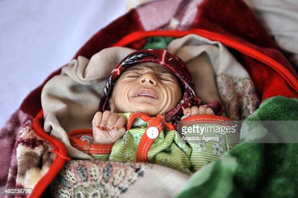 Yemeni malnourished infant cries as he lays on a bed at a therapeutic feeding center in alSabaen Hospital in Sanaa Yemen on November 27 2014...
