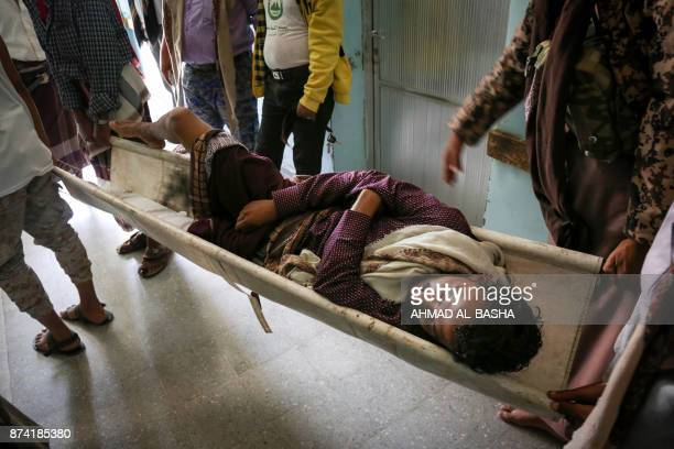 A Yemeni man is carried on a stretcher at a hospital after he was reportedly injured in a Saudiled coalition air strike targeting Shiite Huthi rebels...