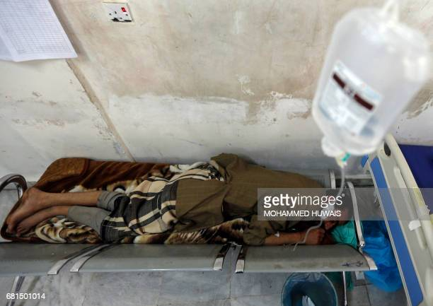 A Yemeni man suspected of being infected with cholera receives treatment at a hospital in Sanaa on May 10 2017 Thirtyfour people have died of...
