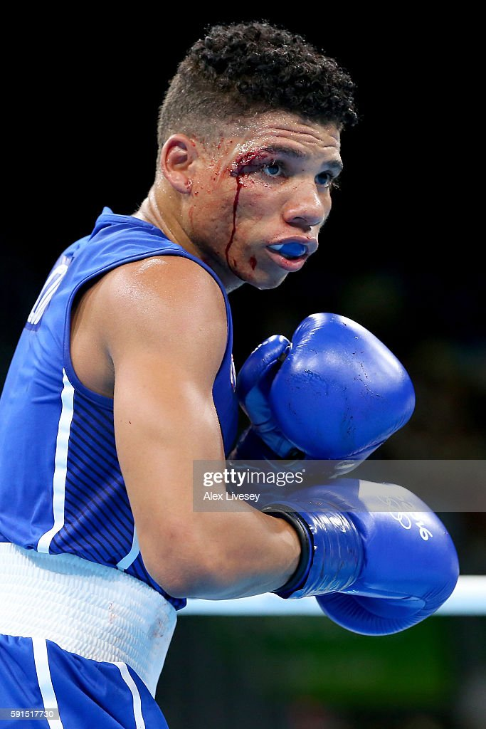 Yosbany Veitia of Cuba suffers a cut above his right eye while boxing Jianguan Hu of China in the Men's Quarterfinal bout during Day 12 of the Rio 2016 Olympic Games at Riocentro - Pavilion 6 on August 17, 2016 in Rio de Janeiro, Brazil.