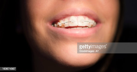 Dating with braces as an adult