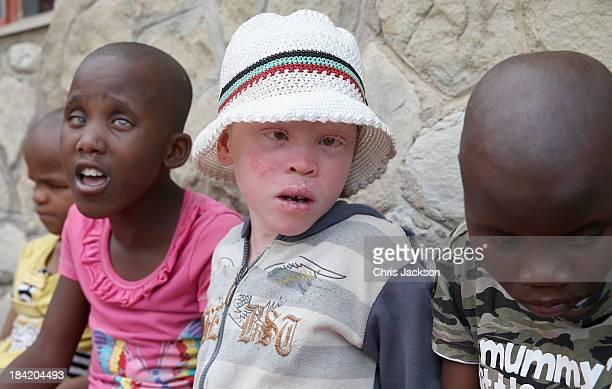 A young albino girl at Sentebale supported St Bernadettes Centre for the deaf on October 11 2013 in Maseru Lesotho Sentebale provides healthcare and...