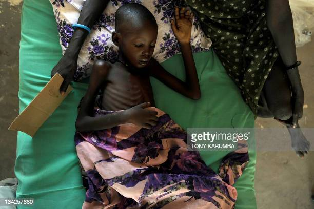 A young bedridden Sudanese girl ailing from malaria and anaemia at a German aid agency Sign of Hope run clinic lays on a bed at Nyal in South Sudan...