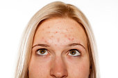 Young blond with pimples on her forehead