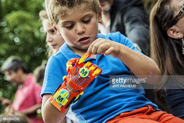 A young boy Maxence born with a right hand malformation examines his new 3Dprinted hand given to him by the Association for the Study and Assistance...