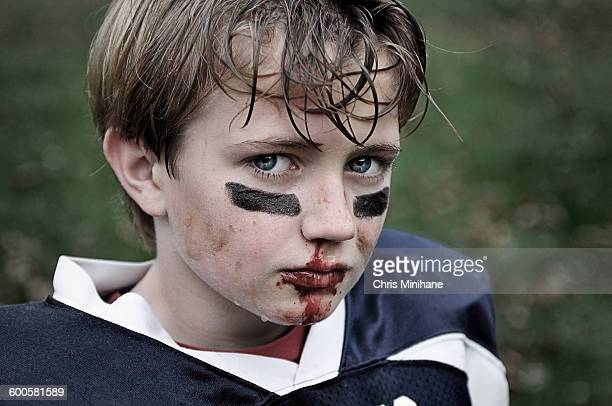 A Young Boy w bloody nose from football.