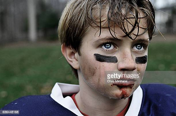 Young Boy Youth Football Injury
