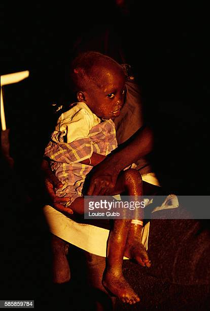 A young child suffering from malnourishment and lesions awaits care at a Medecins sans Frontieres therapeutic feeding center in Kuito Angola After...