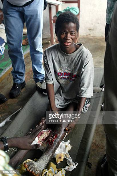 A young fighter of the Liberian United for Reconciliation and Democracy is treated 21 August 2003 by International Committee of Red Cross doctors at...