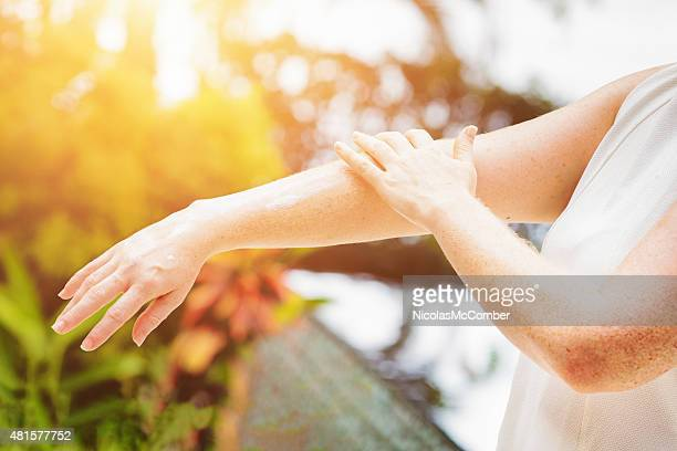 Junge freckled Frau anwenden Sonnenschutz-Creme auf Ihre Arme
