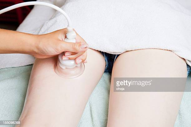 Young girl having liposuction at a health spa