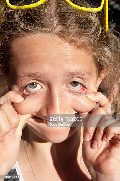 Young girl making distorted funny face