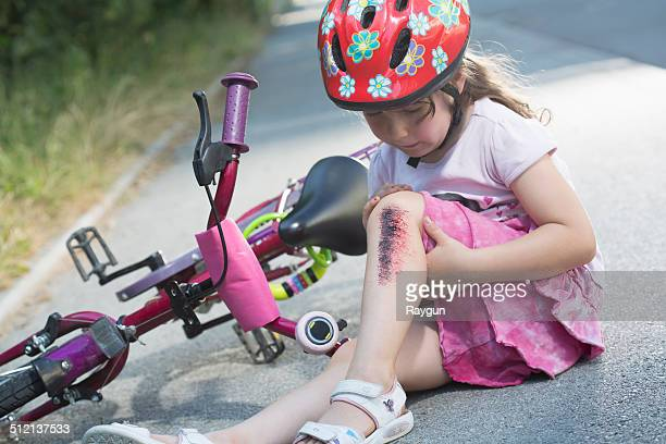 Young girl with injured leg sitting on road with bicycle