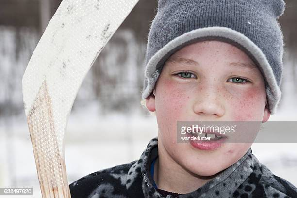 Young hockey player with busted lip