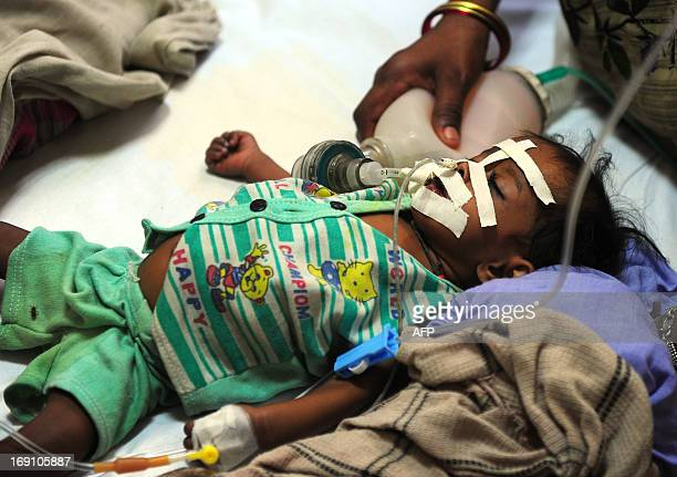 A young Indian baby suffering from diarrhoea lies on a bed at a Government children's hospital in Allahabad on May 20 2013 There has been in increase...
