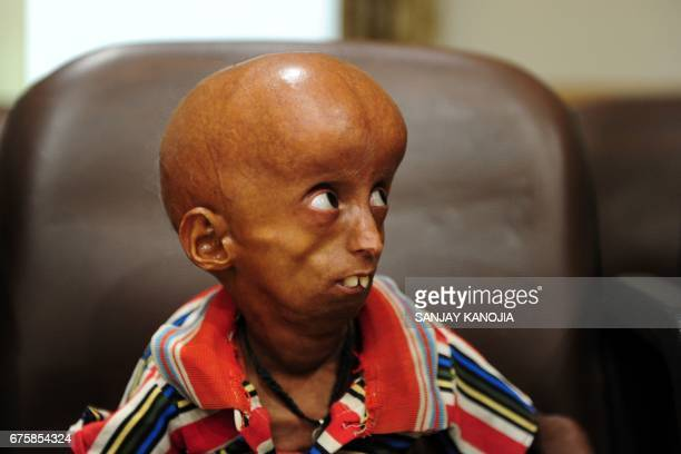 Young Indian progeria sufferer Rupesh sits at Allahabad District Magistrates Office in Allahabad on May 2 as he and his family seek government...