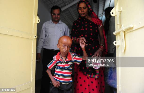 Young Indian progeria sufferer Rupesh walks with his mother and doctor Girish Pandey at Allahabad District Magistrates Office in Allahabad on May 2...