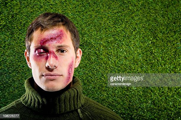 Young Man Lying in Grass with Cuts on Face
