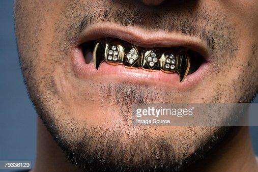 Photos dentition adulte