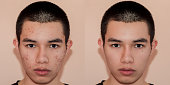 Young man with before and after treatment from acne and pimple, Before and after of face skin treat by scars and wrinkle by acne removal. Spots skin by acne and Smooth skin by treatment.