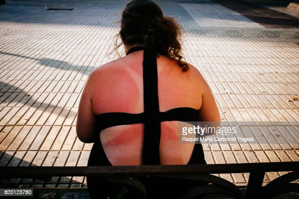 Young obese girl with sunburn sittting on a public bench in Vara de Rey promenade