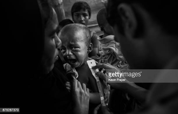 COX'S BAZAR BANGLADESH OCTOBER 25 A young Rohingya Muslim refugee boy suffering from malnutrition has his bicep measured at a field clinic by the NGO...