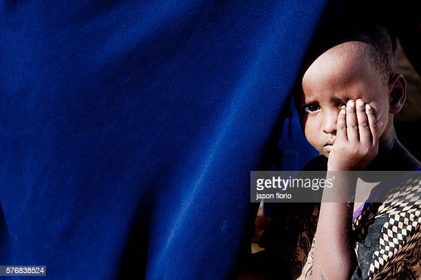 A young Somali child holds one eye closed with her hand in Bosaso Puntland Somalia
