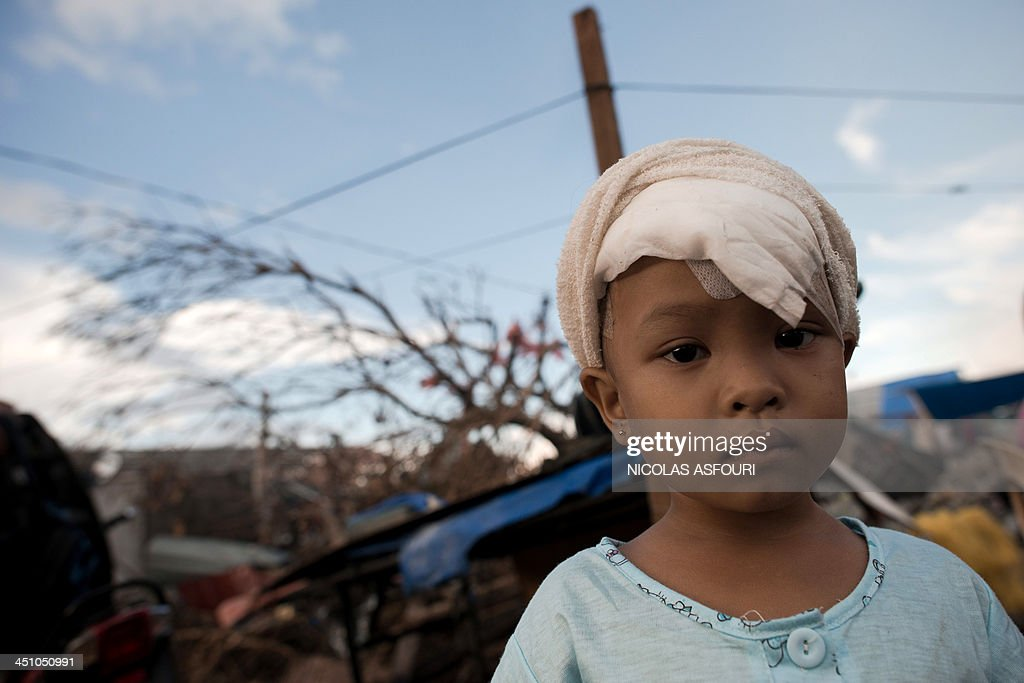 A young typhoon survivor with a bandage around her injured head stands outside her temporary shack in Palo on November 21, 2013. The United Nations has confirmed at least 4,500 killed in the disaster, which brought five-metre (16-foot) waves to Tacloban, flattening nearly everything in their path as they swept hundreds of metres across the low-lying land. AFP PHOTO/ Nicolas ASFOURI