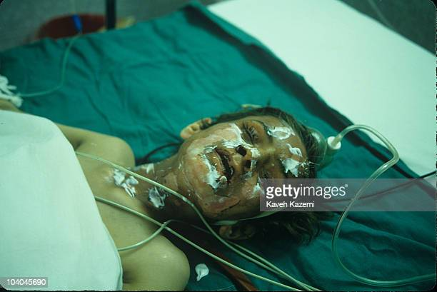 A young victim of Saddam Hussein's chemical gas attack on Halabja lies in a Tehran hospital bed 22nd March 1988 Towards the end of the eight yearlong...