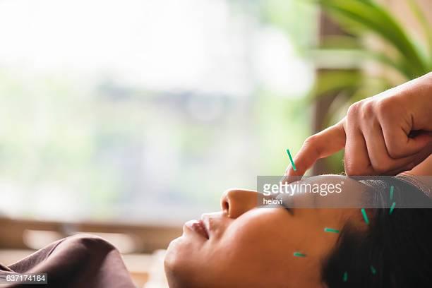 Giovane donna in trattamento di agopuntura
