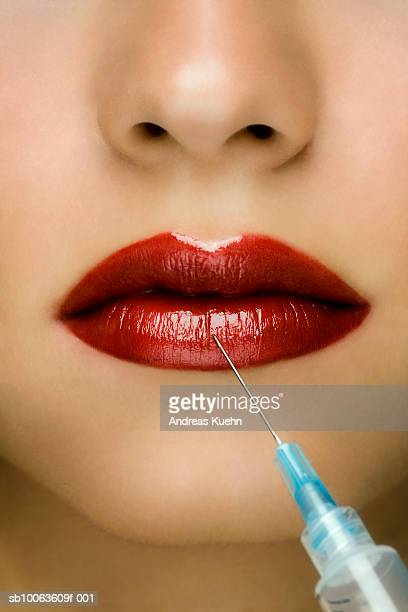 Young woman receiving injection in lip, close-up
