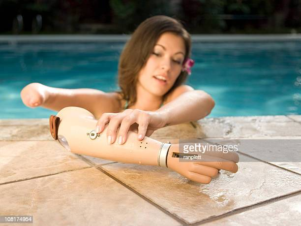 Young Woman with a Prosthetic Arm