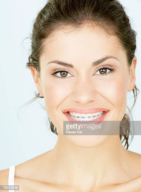 Young woman with braces, close-up, portrait