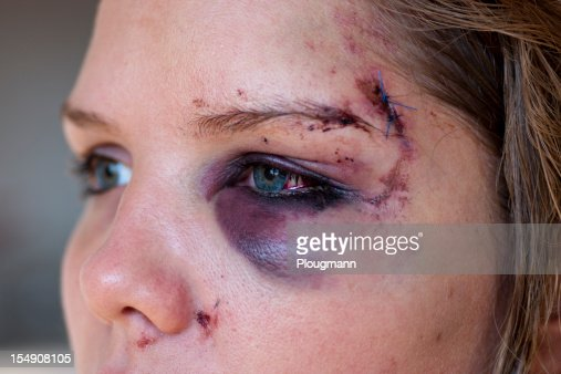 Young woman with eye injury - close up