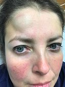 Young Woman with Head Bump Injury