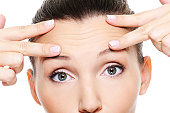 Female face with wrinkles on forehead - skincare treatment