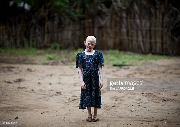 Zamda Albino girl in Mikindani Mtwara Tanzania on February 08 2009