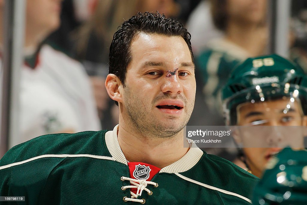 Zenon Konopka #28 of the Minnesota Wild required stitches after being hit in the face by a stick against the Colorado Avalanche but returned to the ice to face the Dallas Stars on January 20, 2013 at the Xcel Energy Center in Saint Paul, Minnesota.