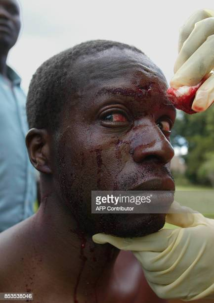 A Zimbabwean beaten by the local riot police next to a polling station in the Harare township of Kuwadzana is treated 09 March 2002 by paramedics...
