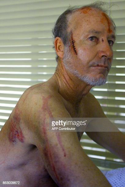 Zimbabwean farmer Ian Kay sits on his bed covered with cuts 04 April 2000 at the Borradaile clinic in Marandera some 70 kilometers east of Harare Kay...