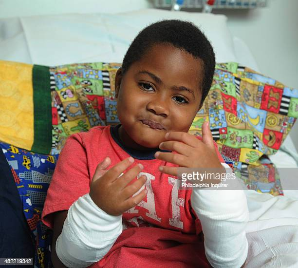 Zion Harvey of Baltimore shows off his new hands after transplant surgery at Children's Hospital of Philadelphia on July 27 2015 Zion lost his hands...