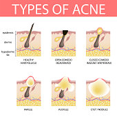 Medical vector illustration of different types of acne on human skin. Appearance of pimples in hair follicle.