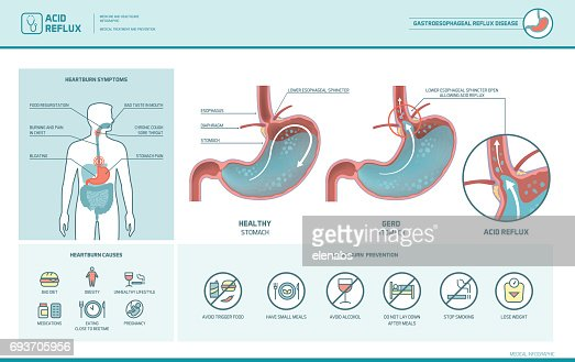 Acid reflux and heartburn infographic : stock vector