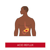 Black man with acid reflux disease. Vector heartburn concept in simple flat style