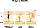 Three stages of the acne formation in the human skin. The sebum in the clogged pore promotes the growth of a bacteria Propionibacterium Acnes. This leads to the redness and inflammation, that associat