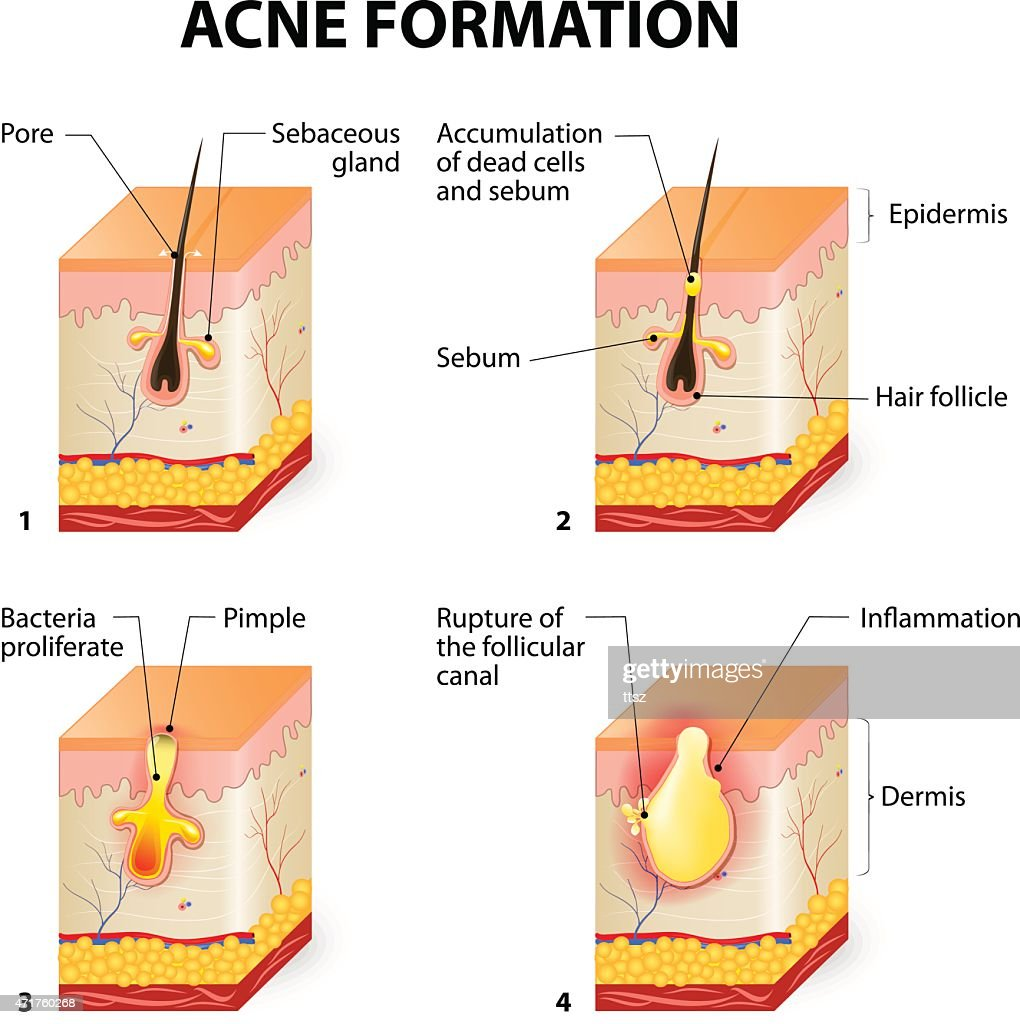 Acne Anatomy Diagram - ( Simple Electronic Circuits ) •