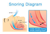Anatomy of human upper airway while sleeping with snoring. Illustration about medical diagram.