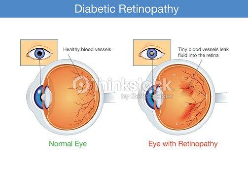 Anatomie Des Normalen Auges Und Diabetische Retinopathie ...