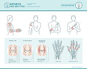 Arthritis and joint pain infographic, anatomic illustration of an inflammed hand and arm